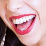 Weiße Zähne – Tipps für ein strahlendes Lächeln
